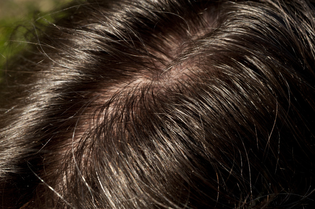 жирные волосы