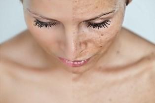 обесцветить волосы на теле и лице